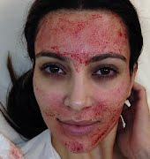 I tried PRP therapy, the Vampire Facial for your eyes